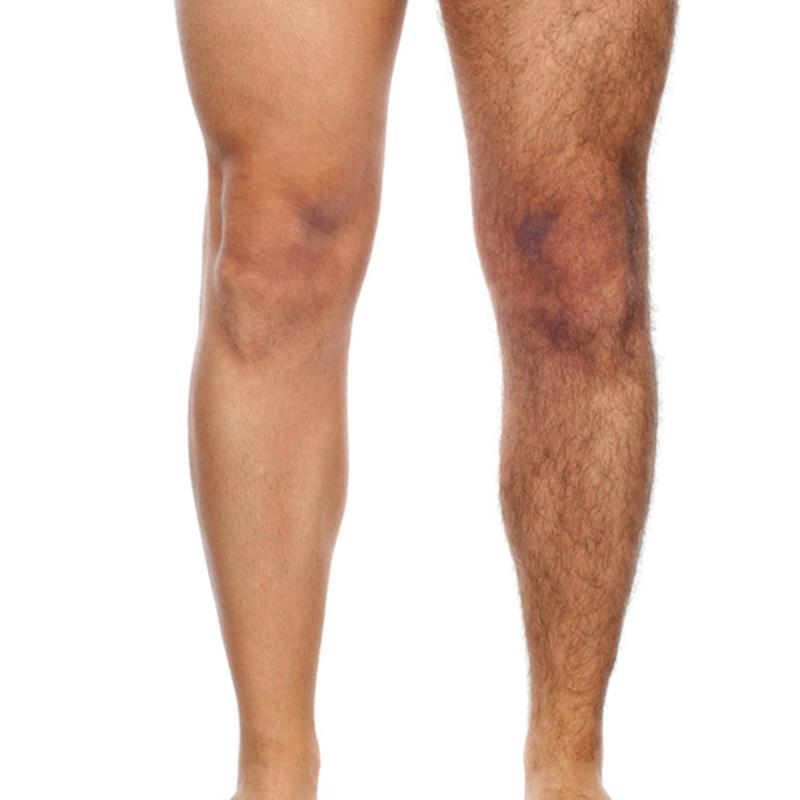 ONLY SKIN Haarentfernung Mann Beine